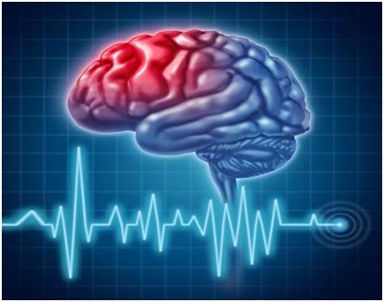 Ишемия головного мозга у бабушки 63- х лет 8